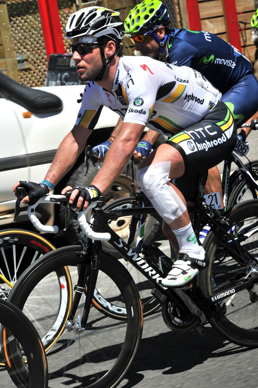 2011 Tour Down Under - Stage 3: Cavendish shows the damage from his crash on Stage 2.