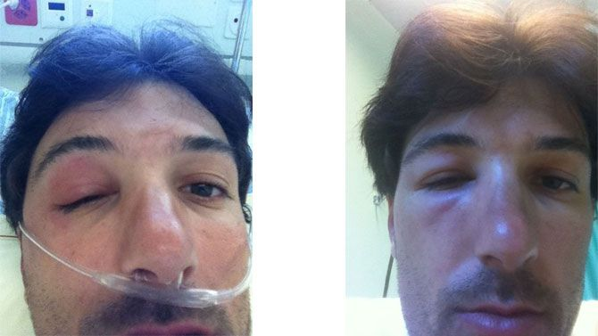 Both of Cancellara's TUEs were for bee stings, according to his team. Photo: Trek