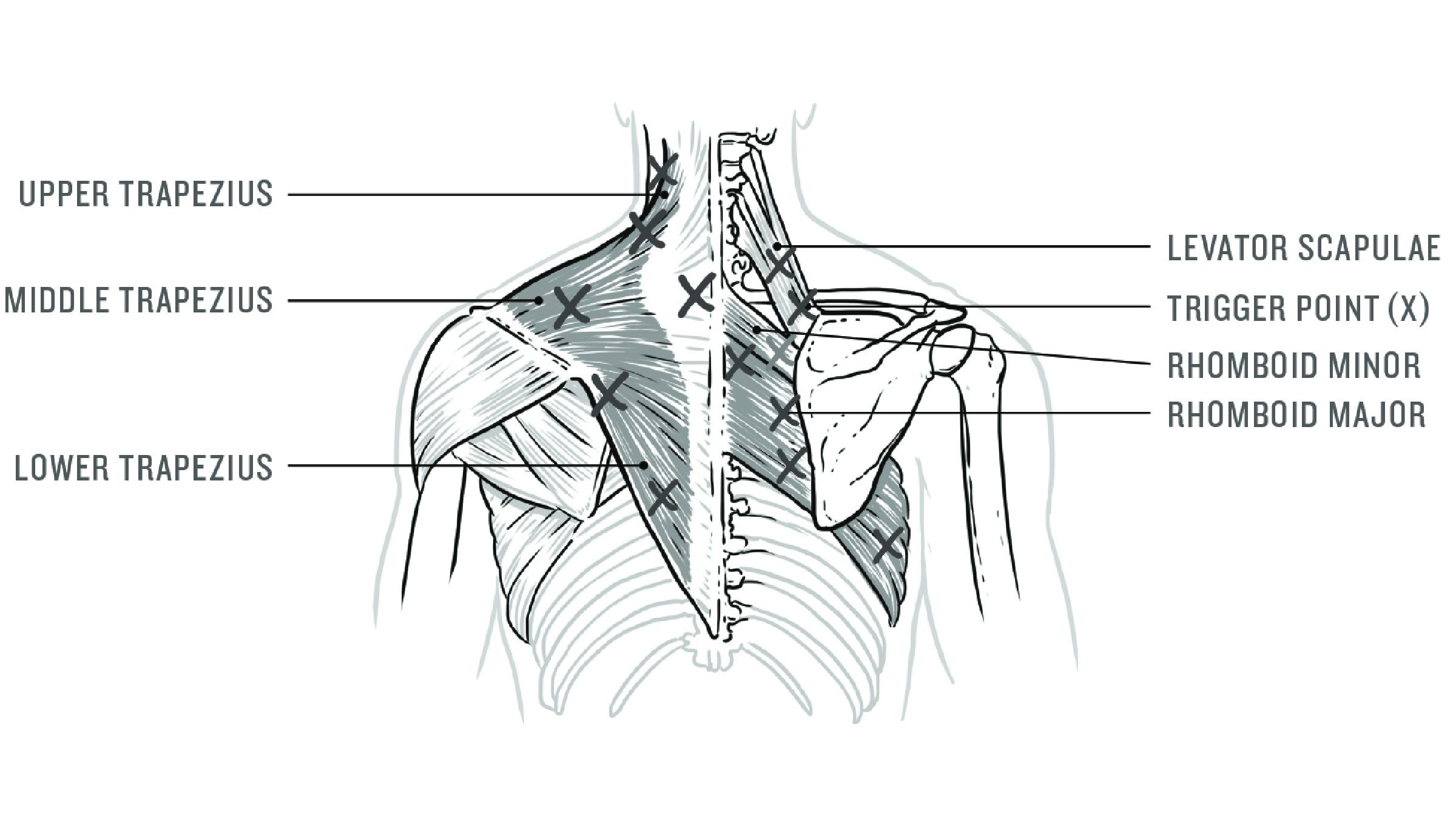 Illustration of muscles in the upper back and neck